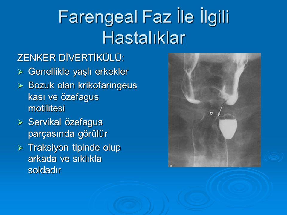 Farengeal Faz İle İlgili Hastalıklar