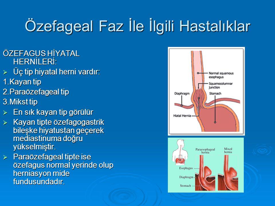 Özefageal Faz İle İlgili Hastalıklar