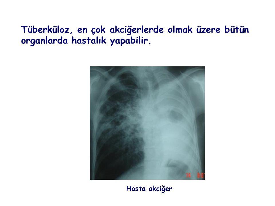 Tüberküloz, en çok akciğerlerde olmak üzere bütün organlarda hastalık yapabilir.