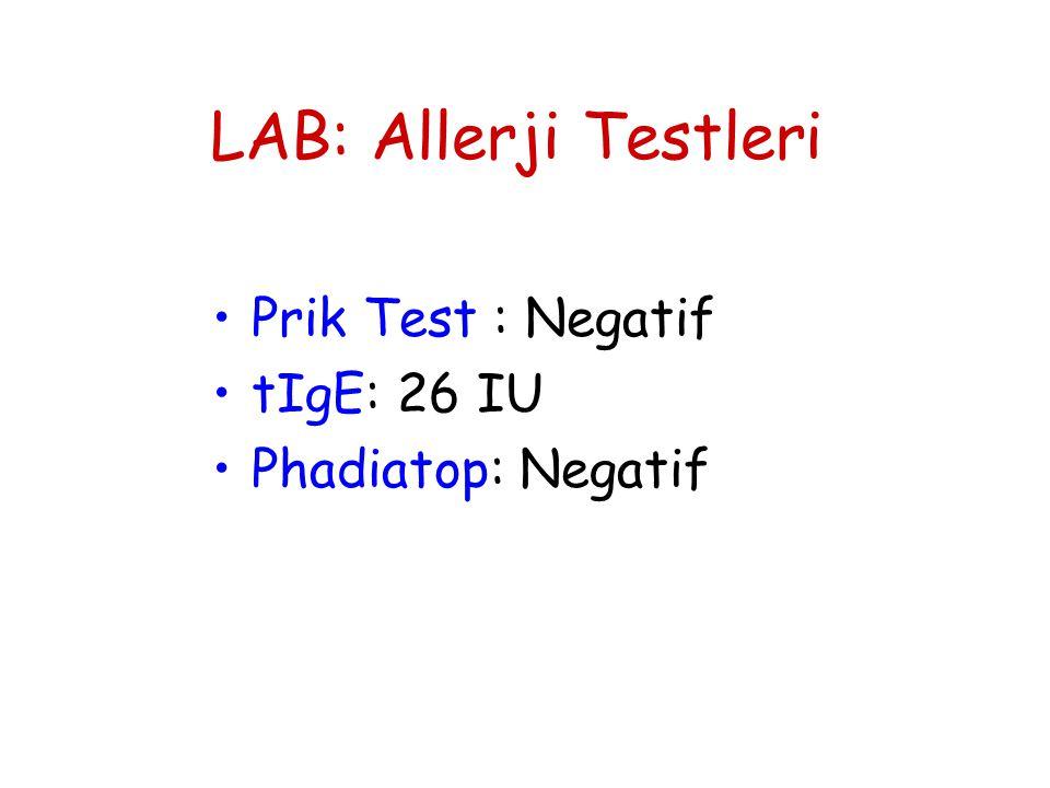 LAB: Allerji Testleri Prik Test : Negatif tIgE: 26 IU