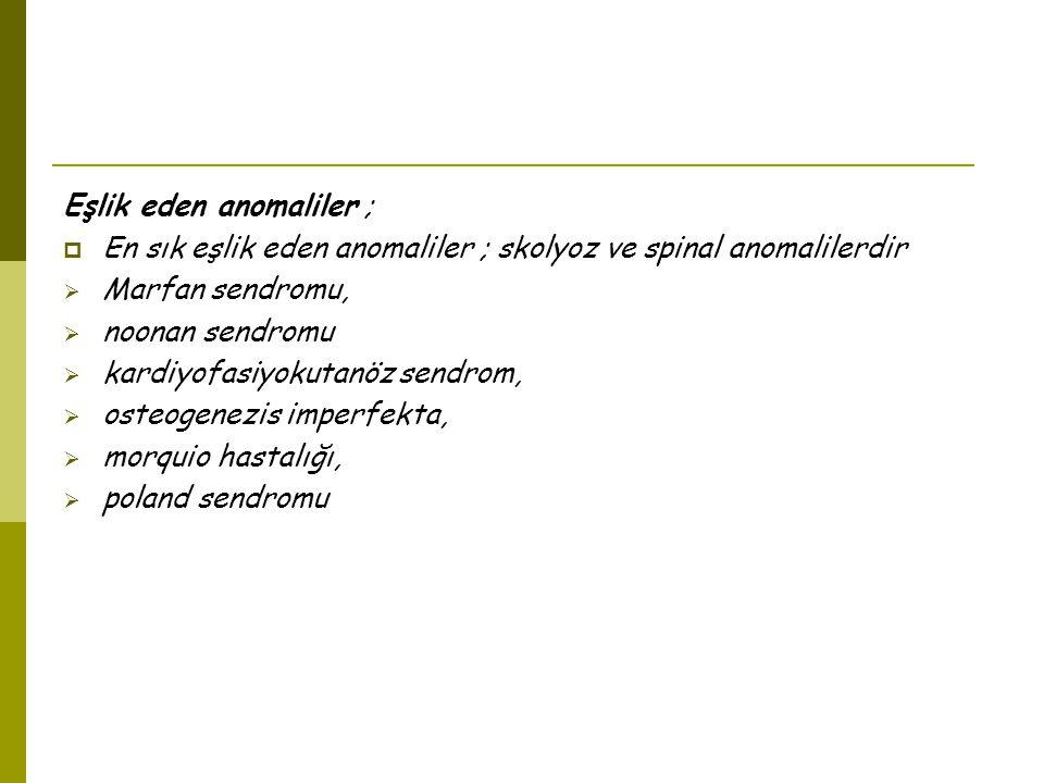 Eşlik eden anomaliler ;
