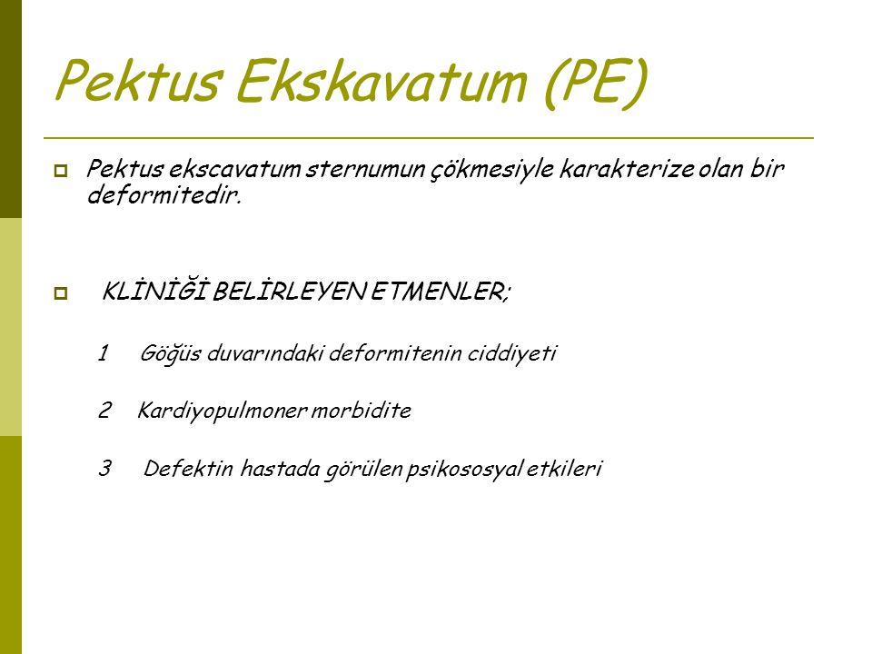 Pektus Ekskavatum (PE)