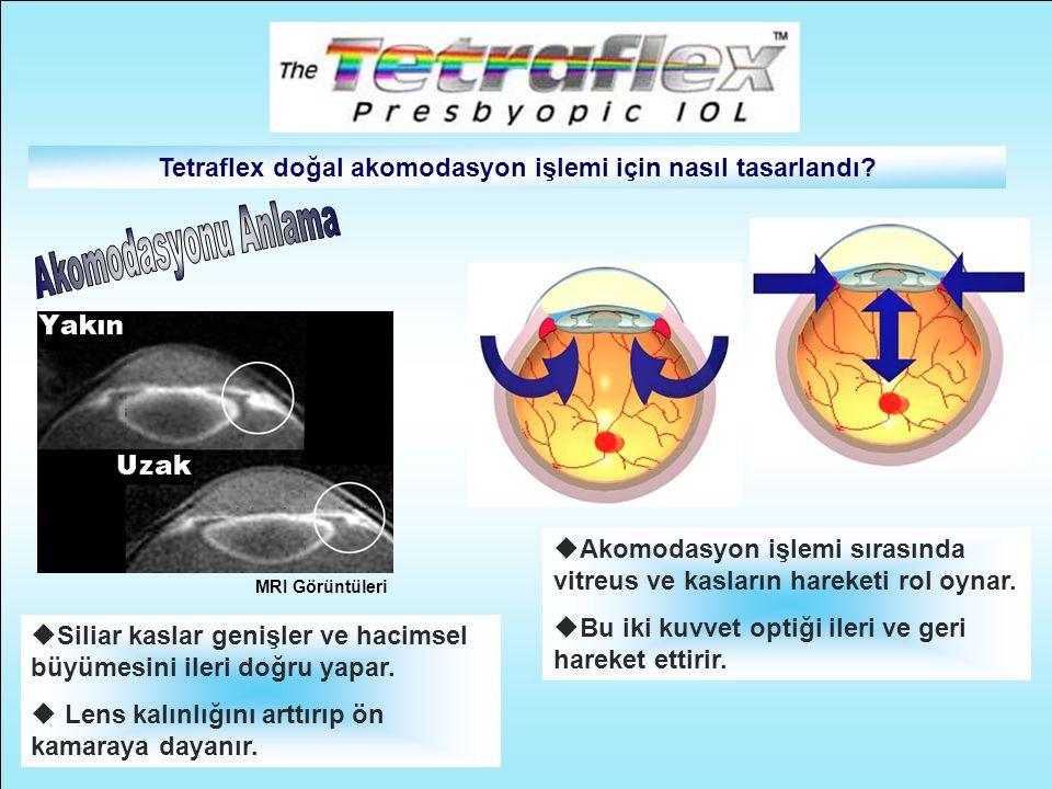 Tetraflex doğal akomodasyon işlemi için nasıl tasarlandı
