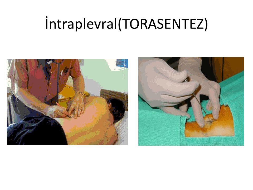 İntraplevral(TORASENTEZ)