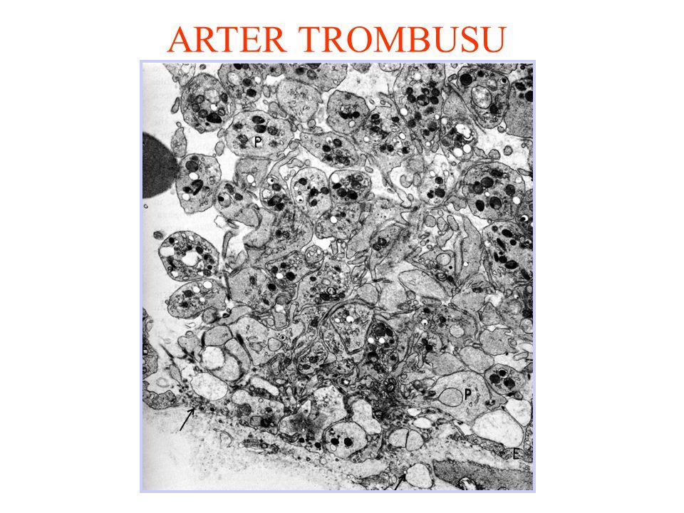 ARTER TROMBUSU