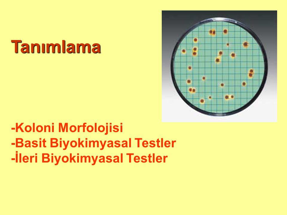 Tanımlama -Koloni Morfolojisi -Basit Biyokimyasal Testler