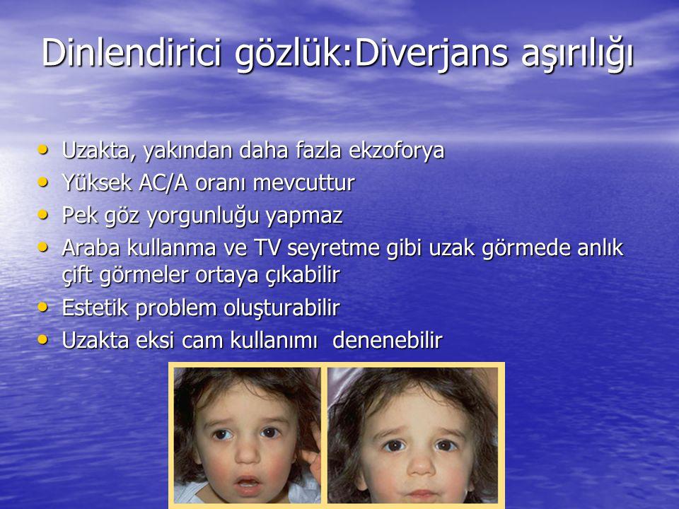 Dinlendirici gözlük:Diverjans aşırılığı