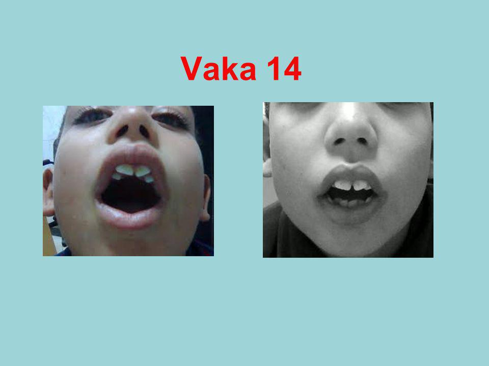 Vaka 14