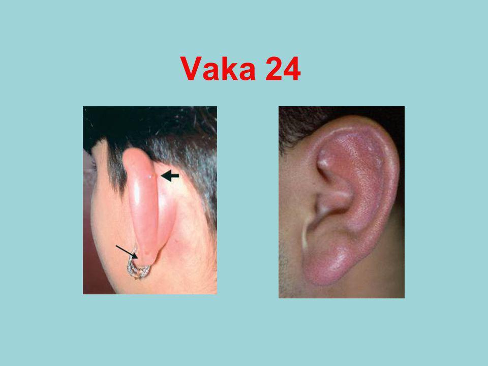 Vaka 24