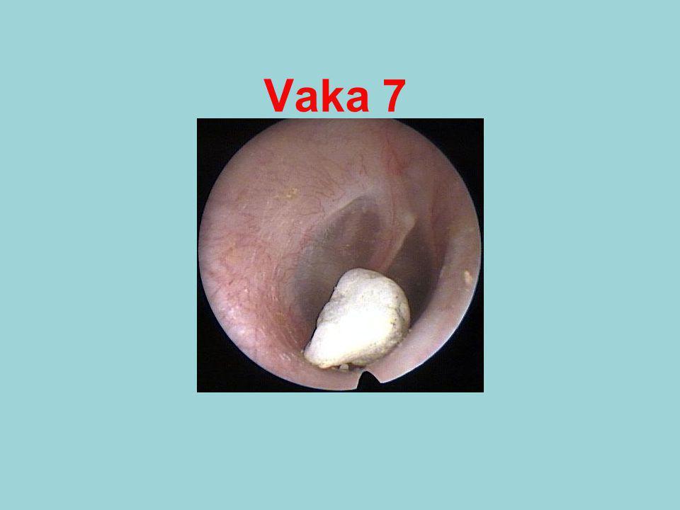 Vaka 7
