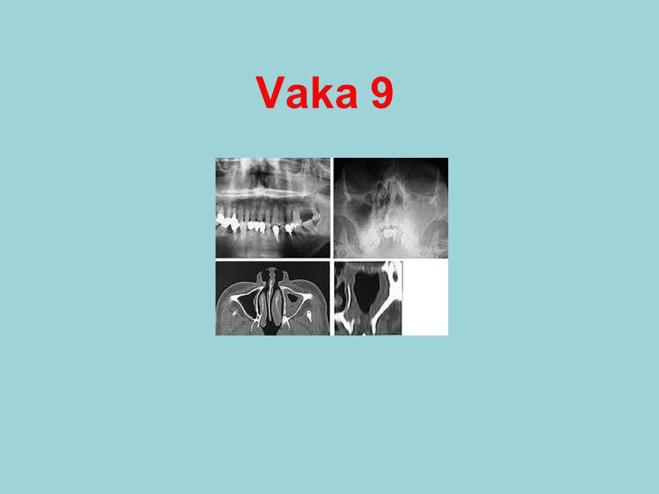 Vaka 9