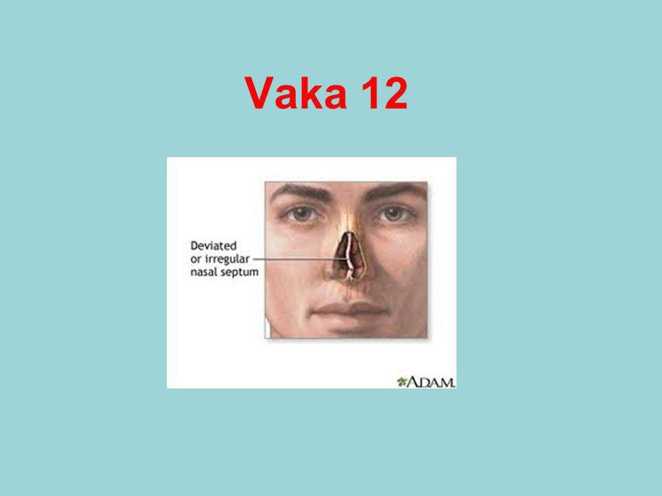 Vaka 12
