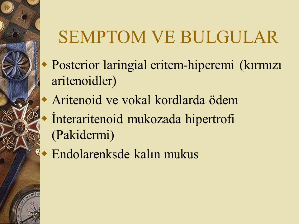 SEMPTOM VE BULGULAR Posterior laringial eritem-hiperemi (kırmızı aritenoidler) Aritenoid ve vokal kordlarda ödem.