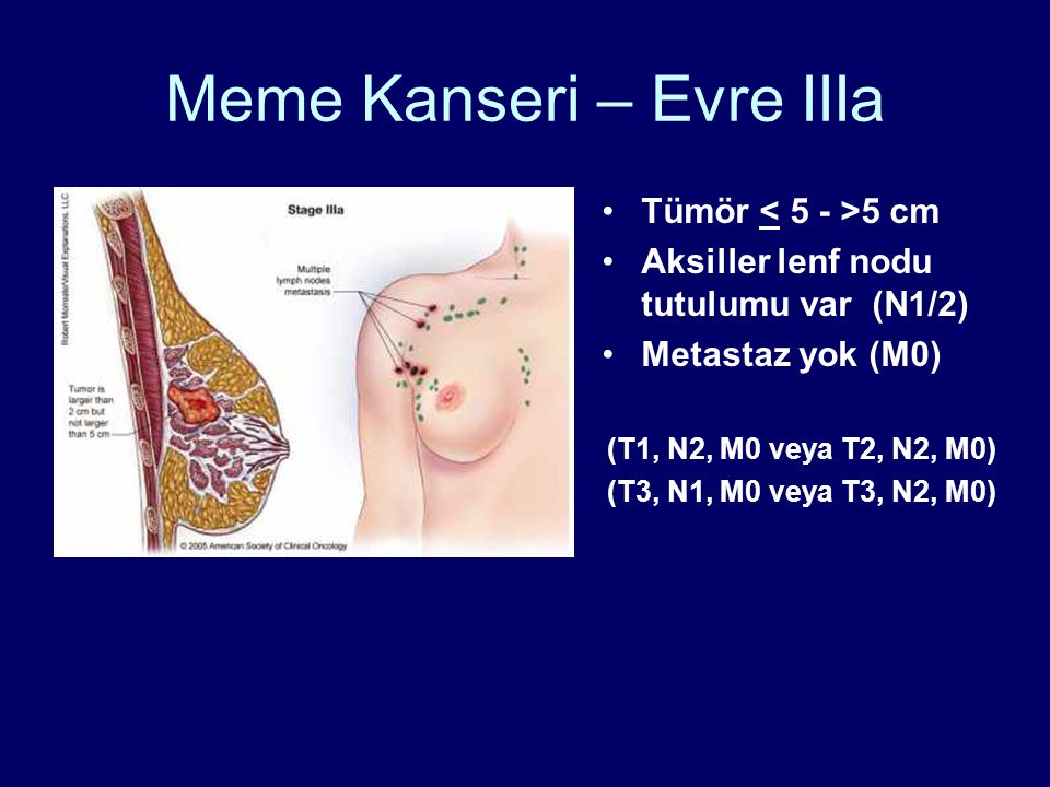 Meme Kanseri – Evre IIIa