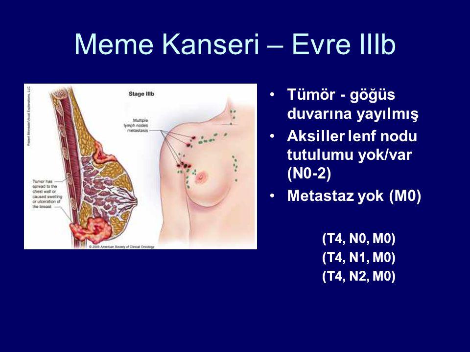 Meme Kanseri – Evre IIIb