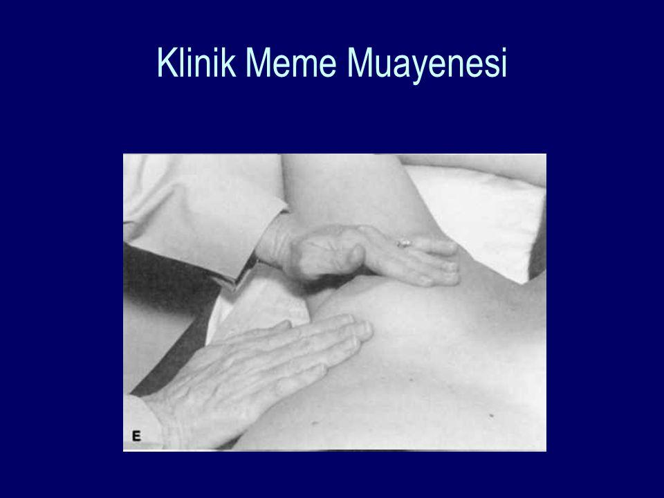 Klinik Meme Muayenesi