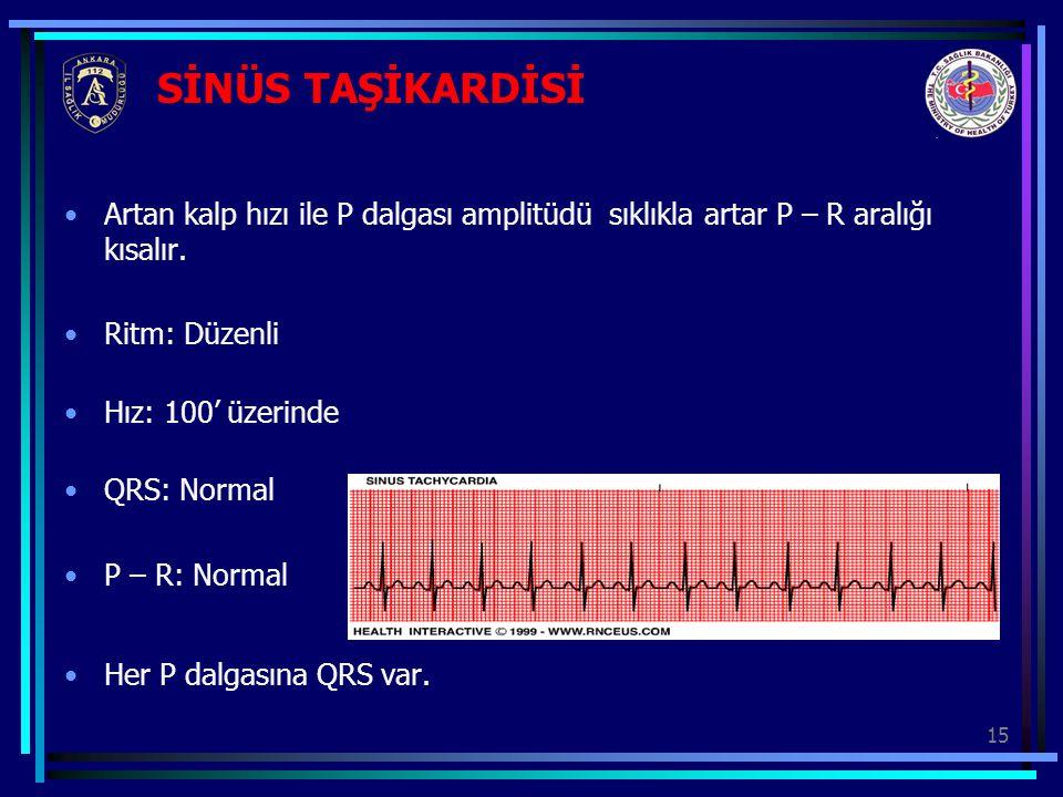 SİNÜS TAŞİKARDİSİ Artan kalp hızı ile P dalgası amplitüdü sıklıkla artar P – R aralığı kısalır. Ritm: Düzenli.