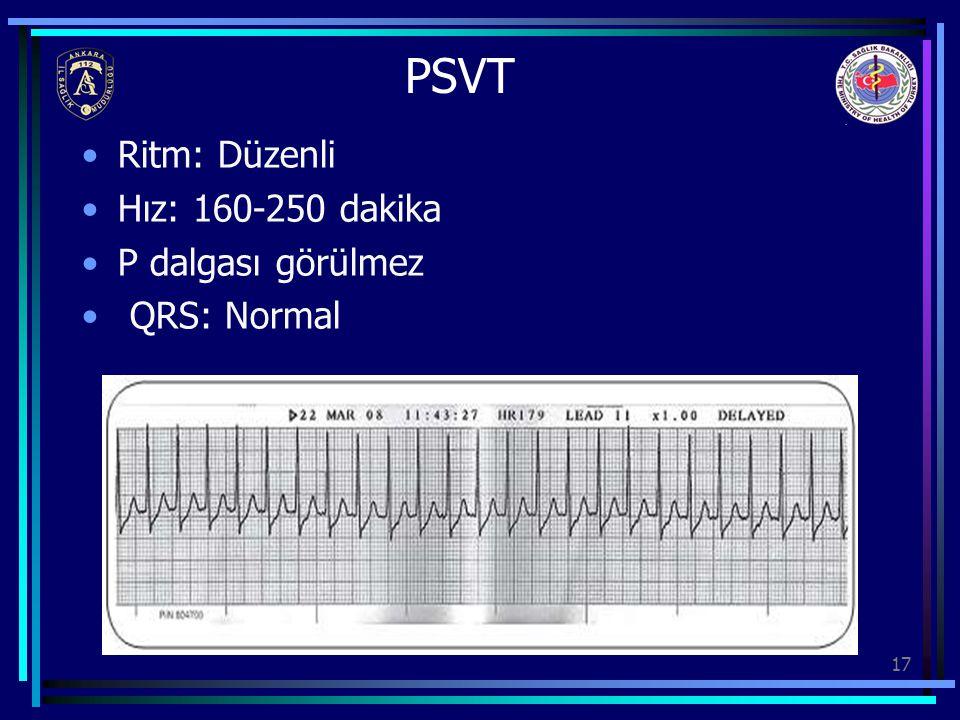 PSVT Ritm: Düzenli Hız: 160-250 dakika P dalgası görülmez QRS: Normal
