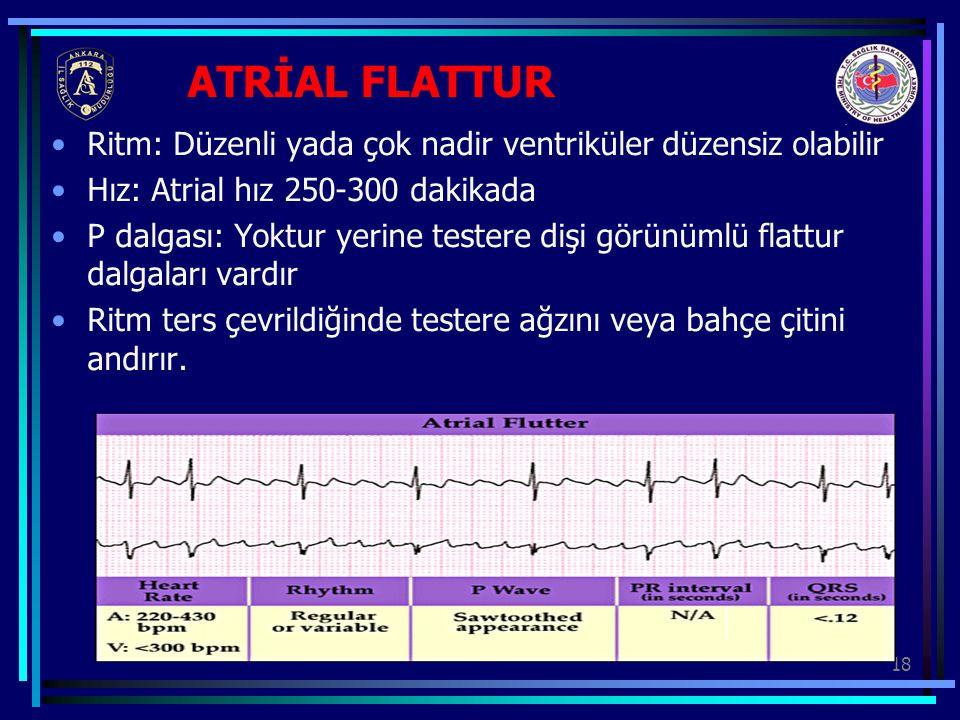 ATRİAL FLATTUR Ritm: Düzenli yada çok nadir ventriküler düzensiz olabilir. Hız: Atrial hız 250-300 dakikada.