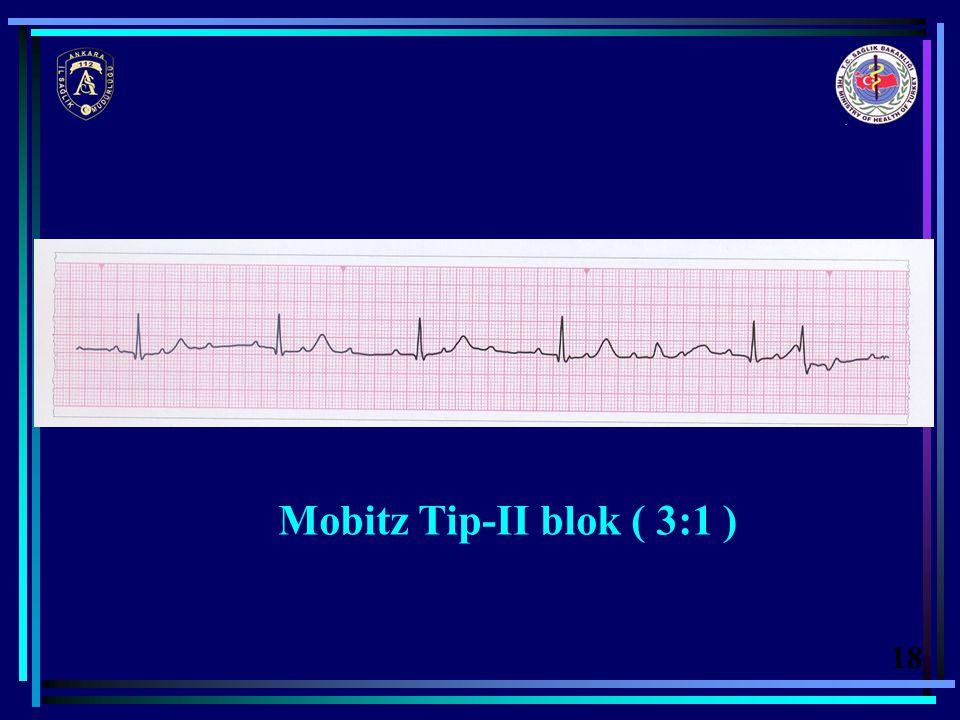 Mobitz Tip-II blok ( 3:1 ) 18