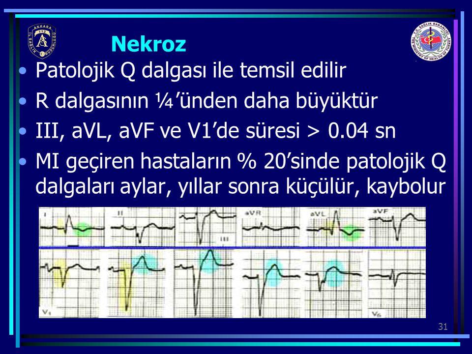 Nekroz Patolojik Q dalgası ile temsil edilir. R dalgasının ¼'ünden daha büyüktür. III, aVL, aVF ve V1'de süresi > 0.04 sn.