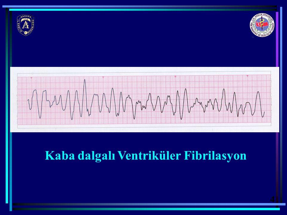 Kaba dalgalı Ventriküler Fibrilasyon