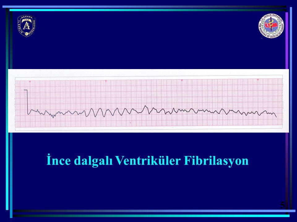İnce dalgalı Ventriküler Fibrilasyon