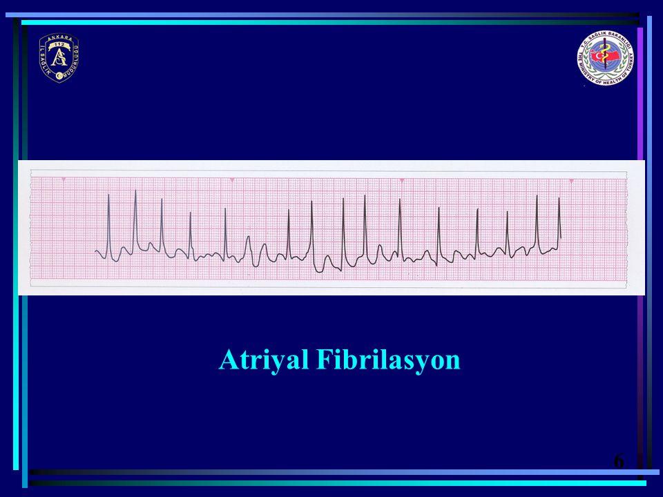 Atriyal Fibrilasyon 6