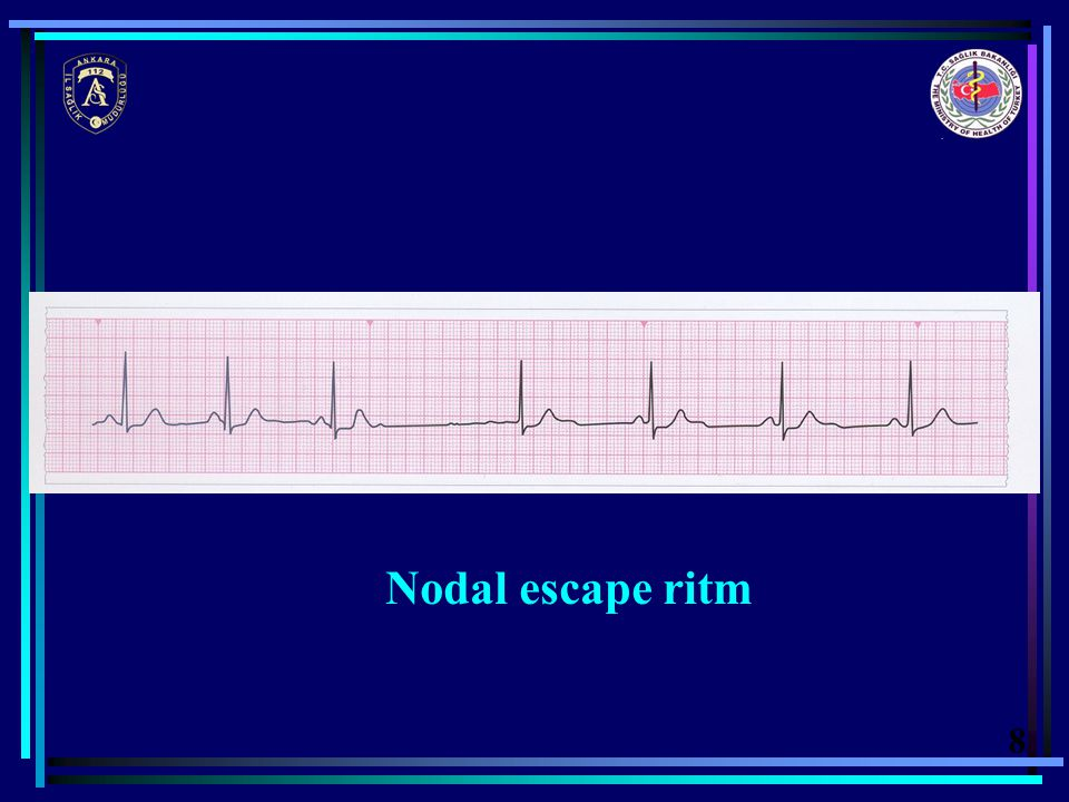Nodal escape ritm 8