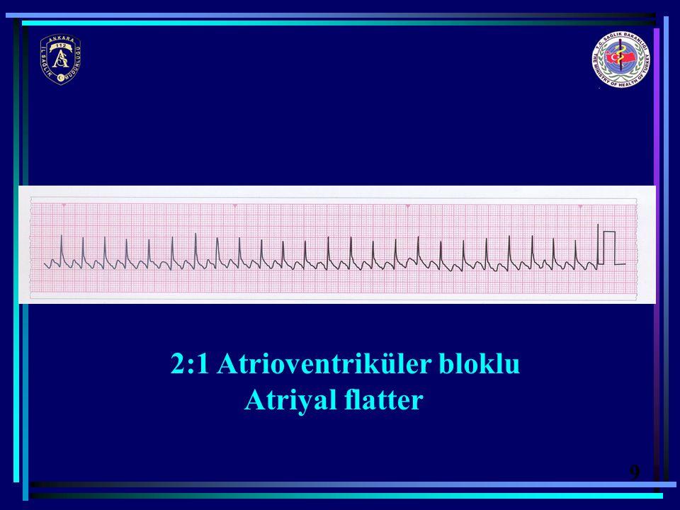 2:1 Atrioventriküler bloklu Atriyal flatter