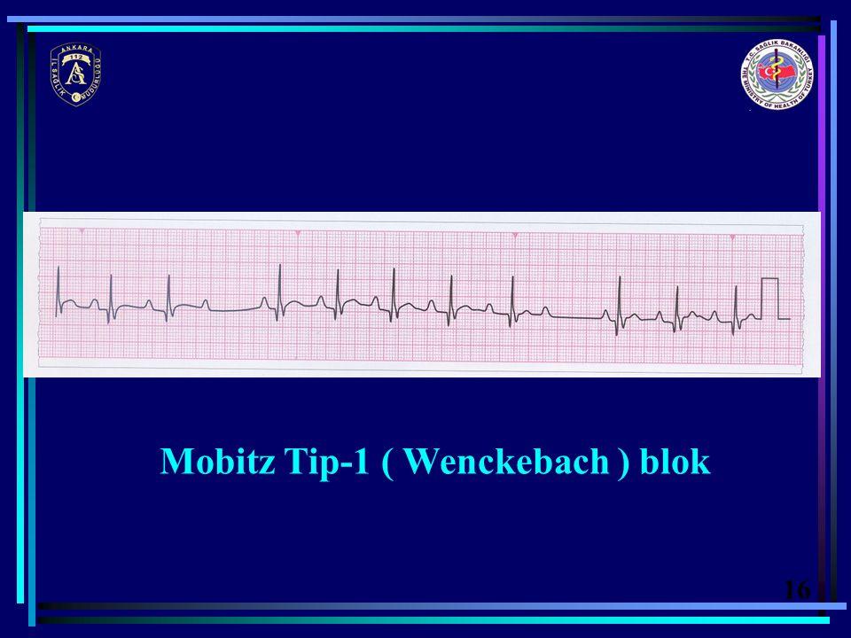 Mobitz Tip-1 ( Wenckebach ) blok