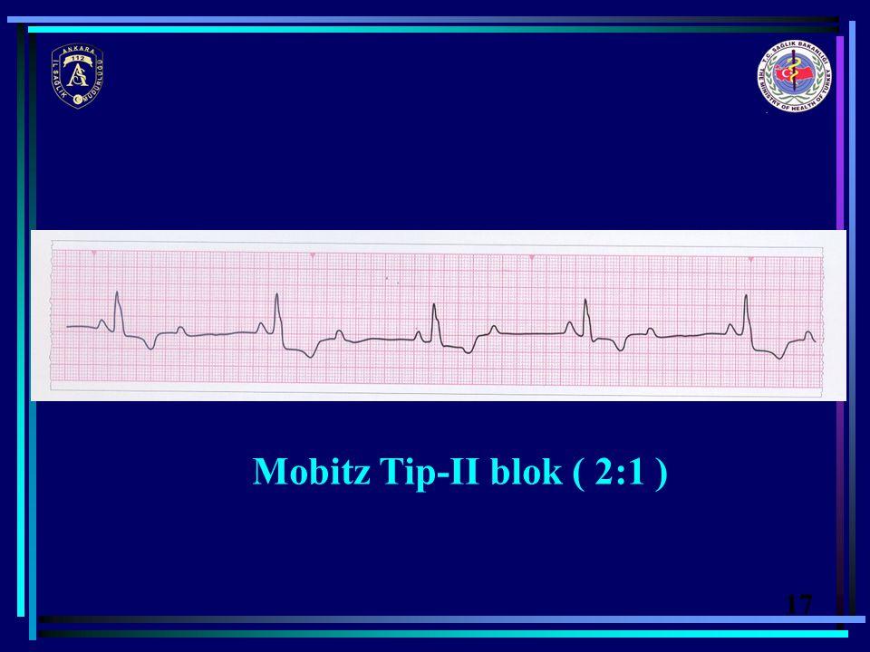 Mobitz Tip-II blok ( 2:1 ) 17