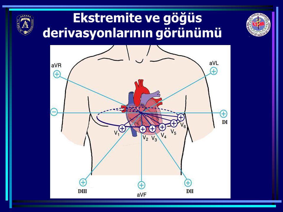 Ekstremite ve göğüs derivasyonlarının görünümü