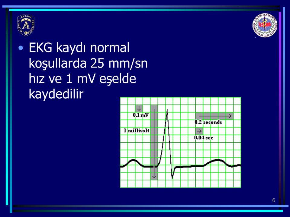 EKG kaydı normal koşullarda 25 mm/sn hız ve 1 mV eşelde kaydedilir