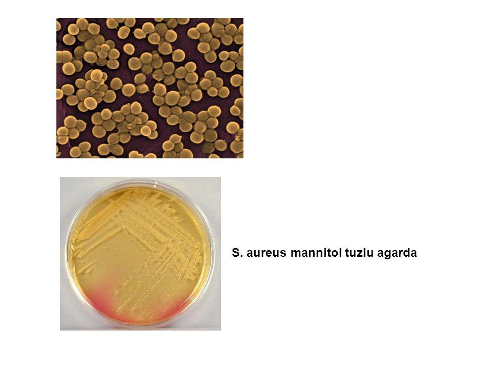S. aureus mannitol tuzlu agarda