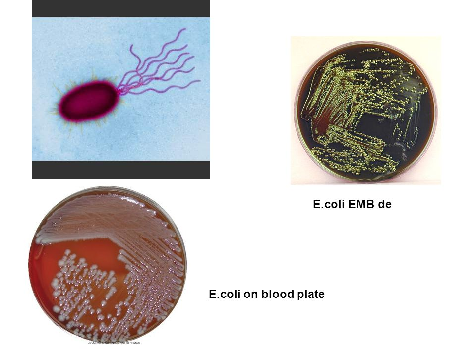 E.coli EMB de E.coli on blood plate