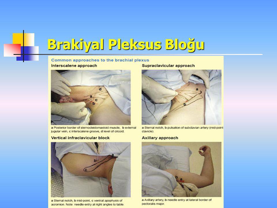 Brakiyal Pleksus Bloğu