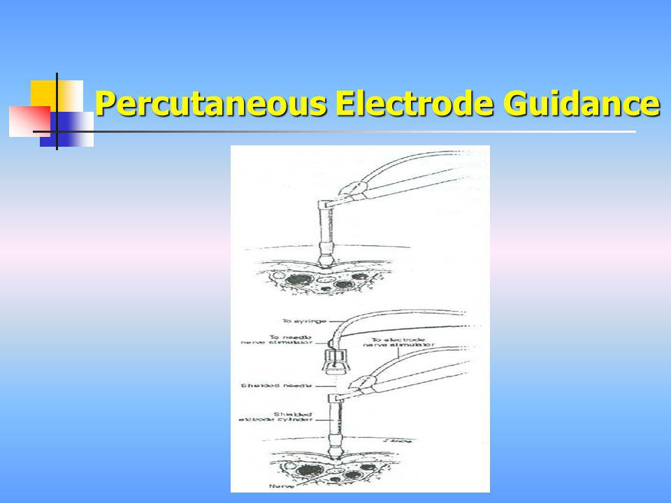 Percutaneous Electrode Guidance