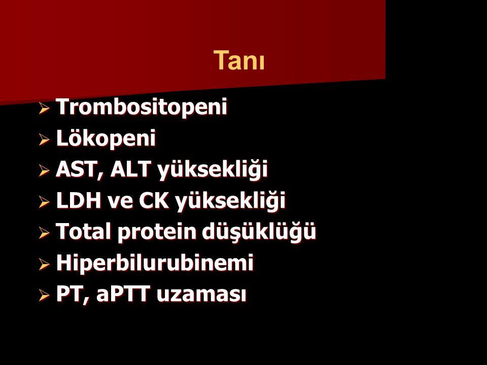 Tanı Trombositopeni Lökopeni AST, ALT yüksekliği LDH ve CK yüksekliği