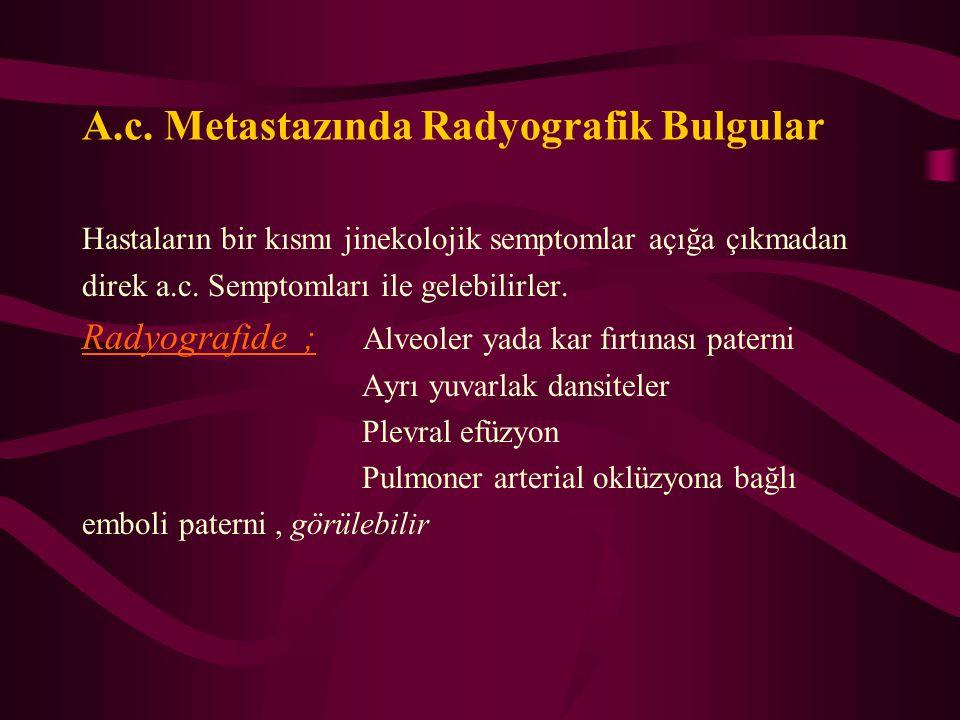 A.c. Metastazında Radyografik Bulgular