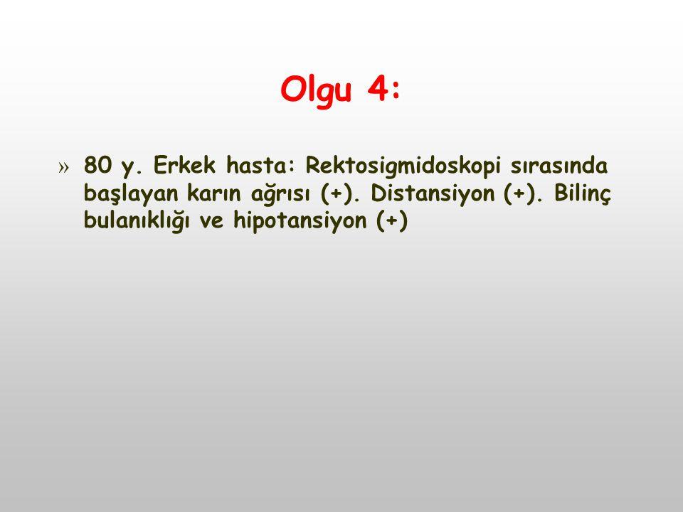 Olgu 4: 80 y. Erkek hasta: Rektosigmidoskopi sırasında başlayan karın ağrısı (+).