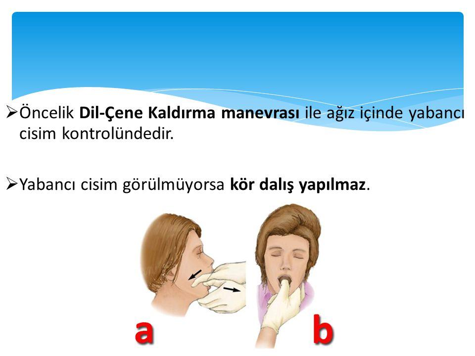 Öncelik Dil-Çene Kaldırma manevrası ile ağız içinde yabancı cisim kontrolündedir.