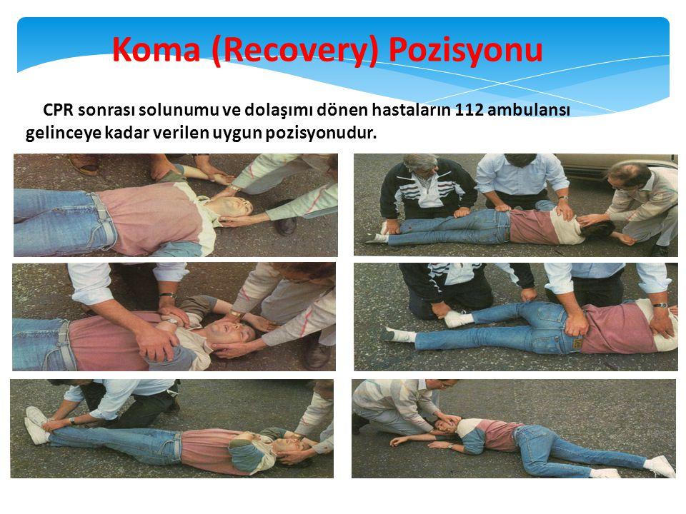 Koma (Recovery) Pozisyonu