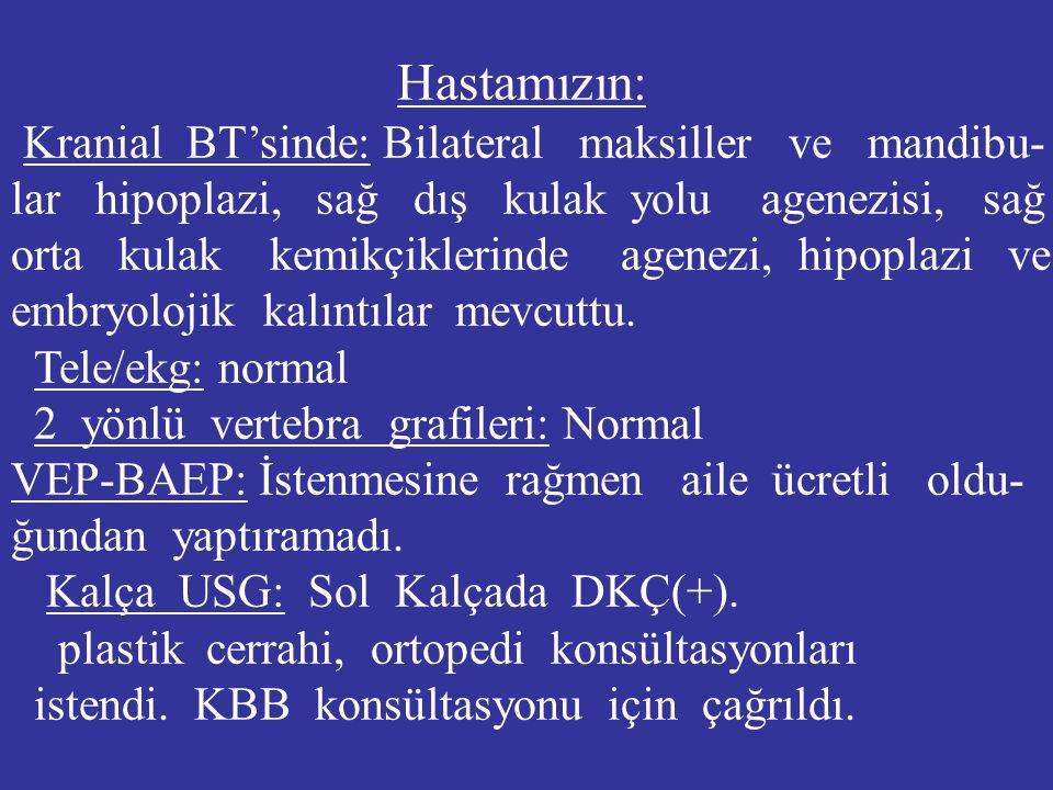 Hastamızın: Kranial BT'sinde: Bilateral maksiller ve mandibu- lar hipoplazi, sağ dış kulak yolu agenezisi, sağ.