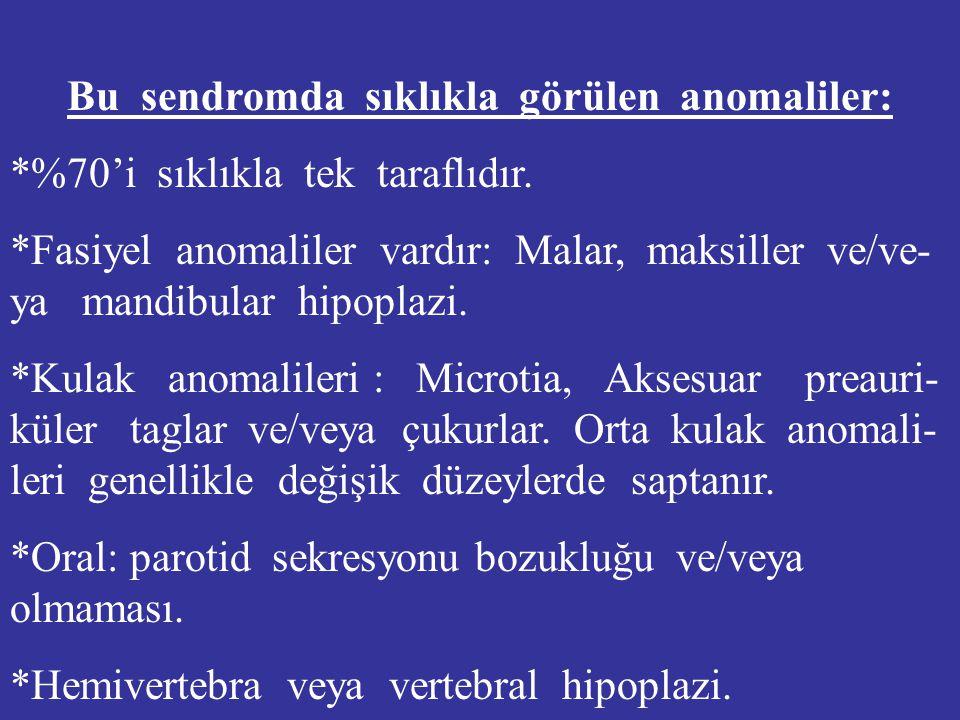Bu sendromda sıklıkla görülen anomaliler: