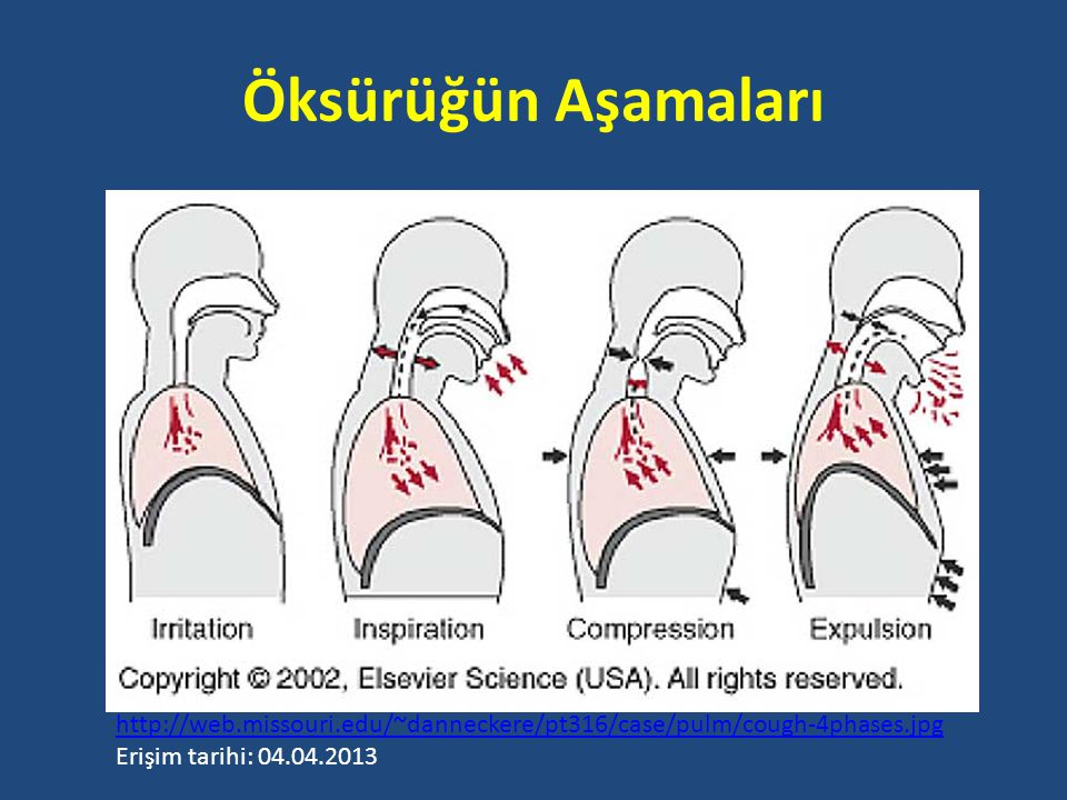 Öksürüğün Aşamaları http://web.missouri.edu/~danneckere/pt316/case/pulm/cough-4phases.jpg.