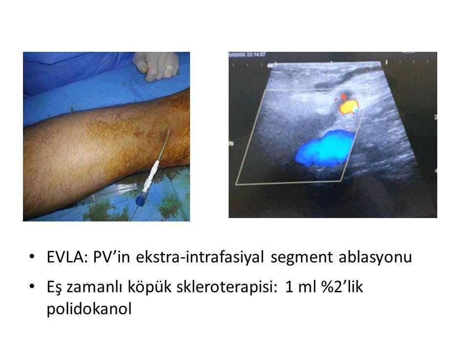 EVLA: PV'in ekstra-intrafasiyal segment ablasyonu