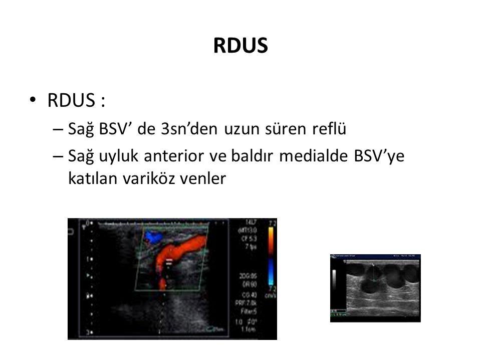 RDUS RDUS : Sağ BSV' de 3sn'den uzun süren reflü