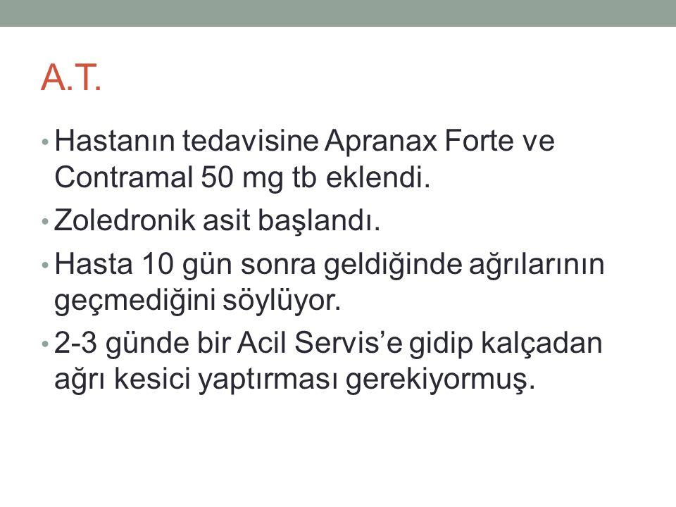 A.T. Hastanın tedavisine Apranax Forte ve Contramal 50 mg tb eklendi.