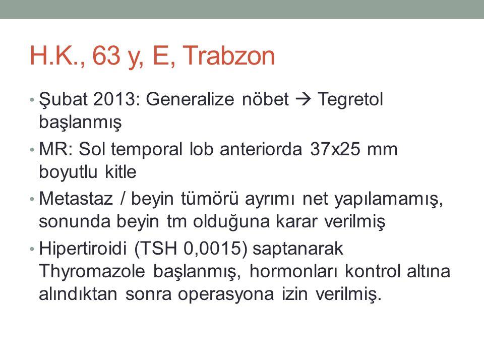 H.K., 63 y, E, Trabzon Şubat 2013: Generalize nöbet  Tegretol başlanmış. MR: Sol temporal lob anteriorda 37x25 mm boyutlu kitle.